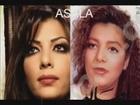 Chanteuses et actrices arabes avant et apres la chirurgie